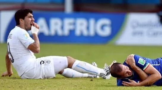 四年前,在巴西世界杯上,南美乌拉圭队的球星苏亚雷斯在与意大利足球队比赛时,情急之下咬向意大利队的后卫基耶利尼的肩膀